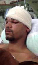 """Após cirurgia, operário atingido por vergalhão recebe alta e diz, """"Deus estava comigo"""""""