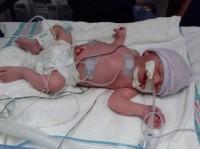 Milagre: bebê com expectativa de vida de cinco minutos surpreende médicos e mobiliza orações por recuperação completa