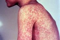 Pastor evangélico orientação Fiéis contra Vacinação parágrafo combater o sarampo los Meio hum um surto da Doença