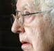 """Com deformação no cérebro, mulher melhora de demência mental: """"Isso é mais que um milagre"""""""